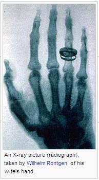 An X-ray picture (radiograph), taken by Wilhelm Röntgen, of his wife's hand