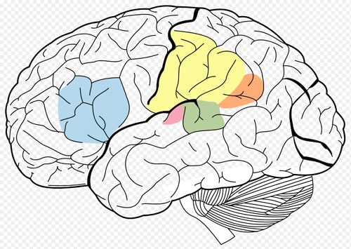 Some of the areas of the brain involved in language processing: Broca's area(Blue), Wernicke's area(Green), Supramarginal gyrus(Yellow), Angular gyrus(Orange) ,Primary Auditory Cortex(Pink)